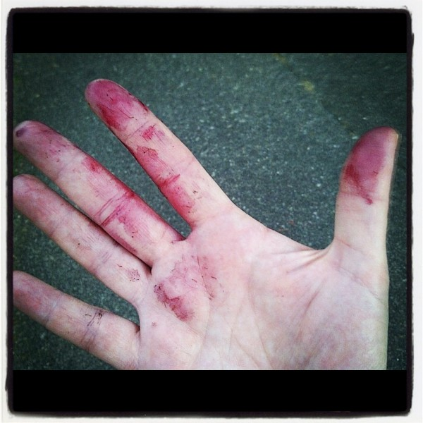Hand covered in blackberry juice
